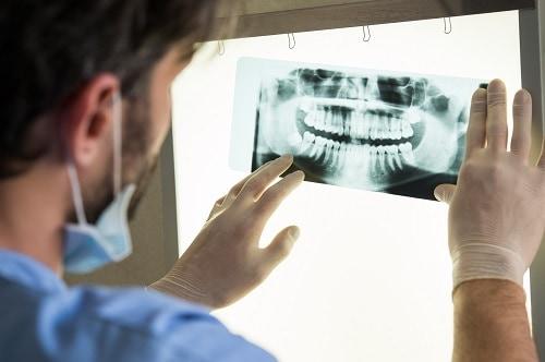 man examines dental x-ray